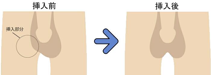 偽睾丸 挿入前と挿入後