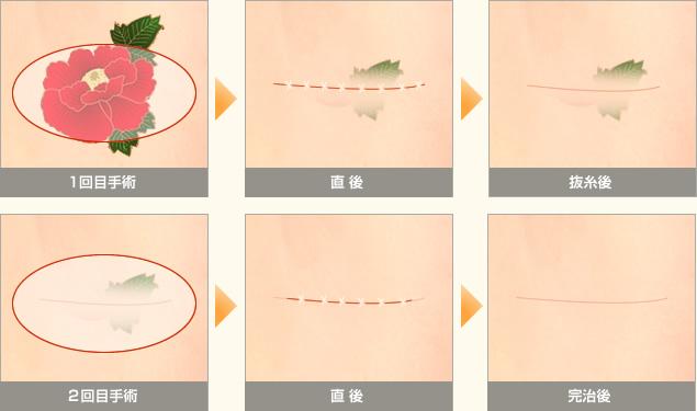 切開法手術の1回目2回目の直後抜糸後のイメージイラストです